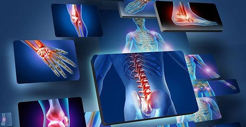 Consigli pratici per combattere i dolori articolari