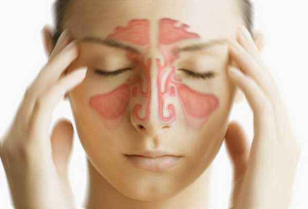 Sinusite e rimedi naturali