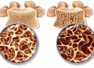 Cure naturali per l'osteopenia