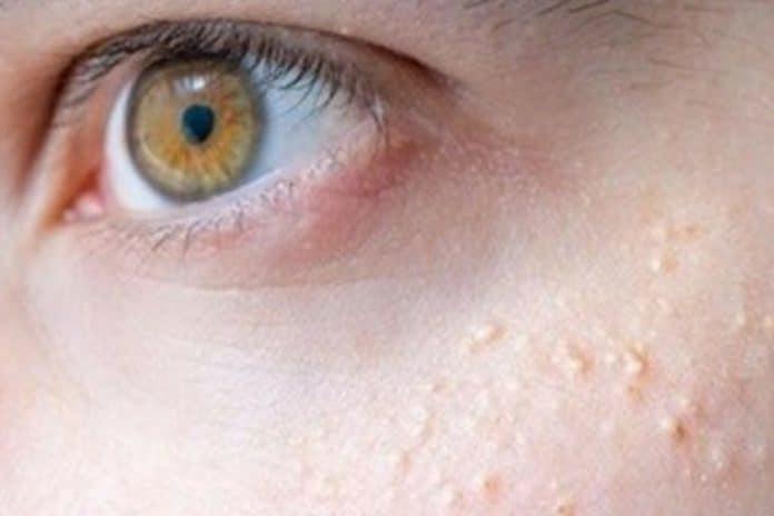 Grani di miglio sul viso
