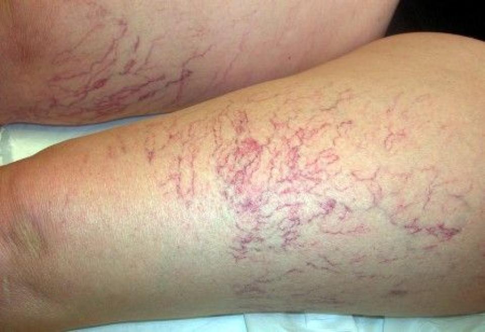 Capillari antiestetici e rotti nelle gambe: cause e rimedi ...
