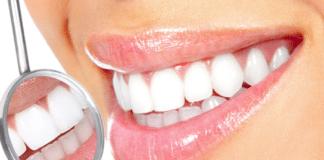 sbiancare i denti