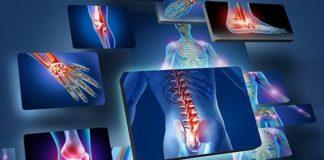 combattere i dolori articolari