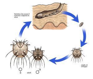 Scabbia terapia naturale