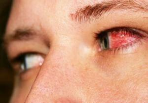 malattie-occhi