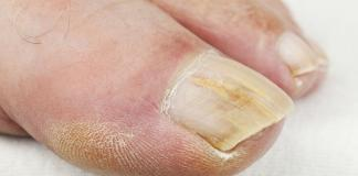 Rimedi naturali per la micosi delle unghie